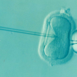 How Does Frozen Donor Egg IVF Work?